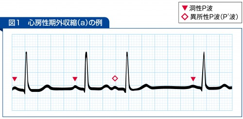 心房性期外収縮(a)の例