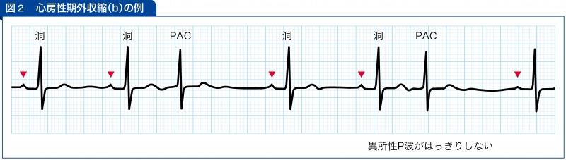 心房性期外収縮(b)の例