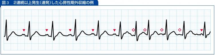 2連続以上発生(連発)した心房性期外収縮の例