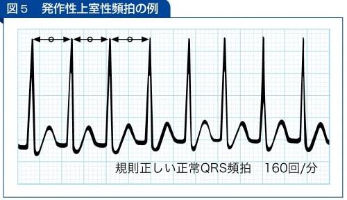 発作性上室性頻拍の例