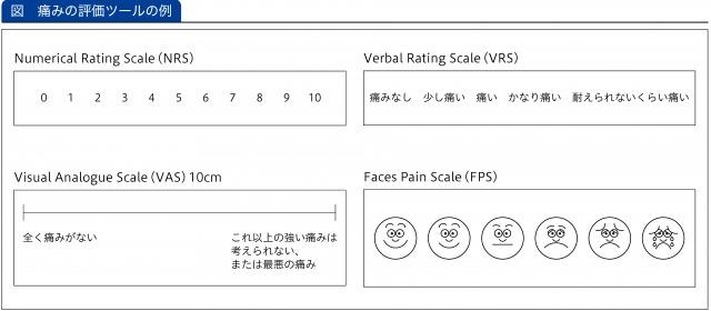 痛みの評価ツールの例