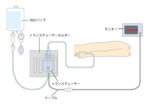 「動脈ライン 加圧バック」の画像検索結果