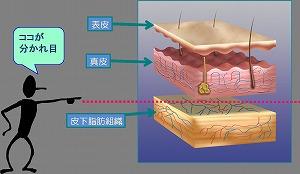 皮下組織説明図