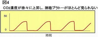 呼気が排泄しにくい状態(閉塞性肺疾患や気管支痙攣)などが疑われる波形