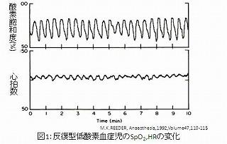 反復型低酸素血症児のSpO2HRの変化