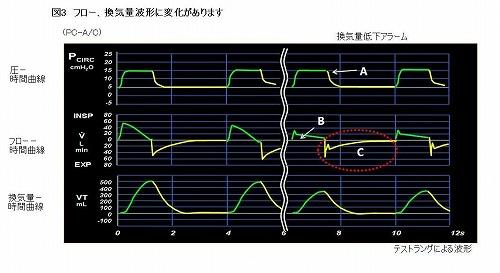 グラフィック波形が左から右に変化しているもの