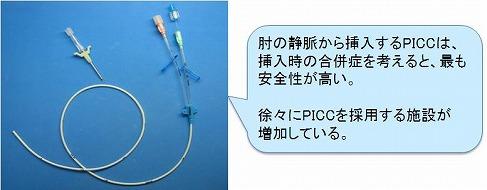 中心静脈カテーテル挿入経路とカテーテルの選択