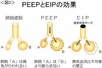 PEEPとEIPの効果