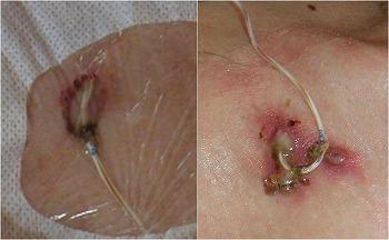 CVC挿入部の固定糸の感染
