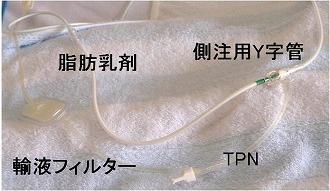 側注用Y字管から脂肪乳剤を投与している写真