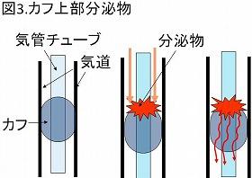 カフ上部分泌物説明図