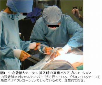 中心静脈カテーテル(central venous catheter:CVC)挿入時の高度バリアプレコーション