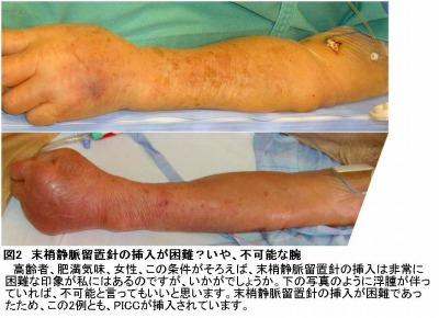 末梢静脈留置針の挿入が困難な腕