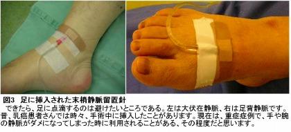 足に挿入された末梢静脈留置針