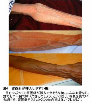 留置針が挿入しやすい腕