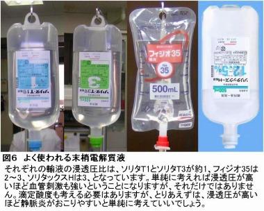 よく使われる末梢電解質液