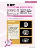 ナース専科 2013年8月号『検査を極める!』内容⑤