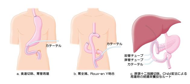 腹部手術時の空腸瘻造設の方法