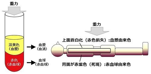 (伊藤 茂:ご遺体の変化と管理,照林社,2009を参考に作図)