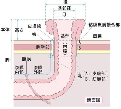 ストーマの構造説明図