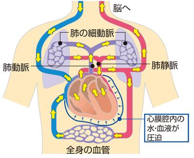 心タンポナーデの仕組み説明図
