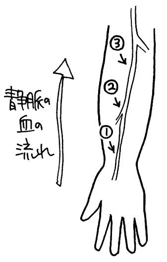 点滴で血管が長く見えるときは末端から刺す