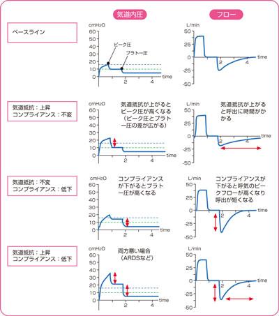 圧の上昇とフローの変化説明図