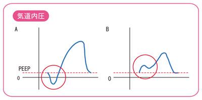 気道内圧波形の異常のポイント
