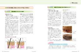 ナース専科2014年7月号『褥瘡をつくらない!』内容②