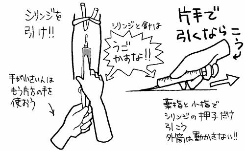 シリンジ採血のコツ・手順