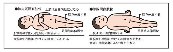特異肢位の観察説明図