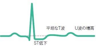 低カリウム血症による心電図変化