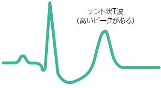高カリウム血症による心電図変化