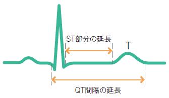 低カルシウム血症による心電図変化