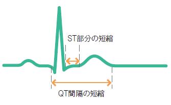 高カルシウム血症による心電図変化