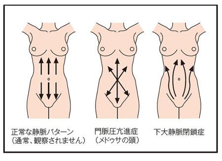 皮膚状態の観察説明図