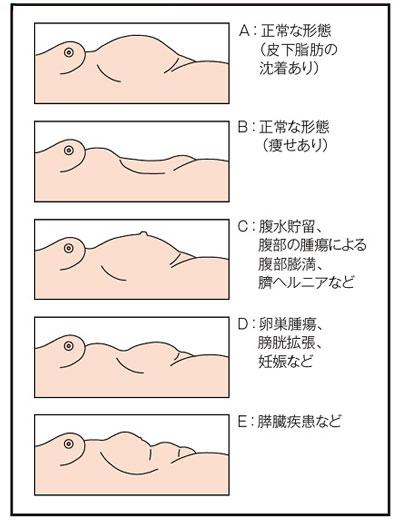 腹部の形態の見方説明図