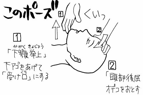 アンビューバッグの使い方・手順1