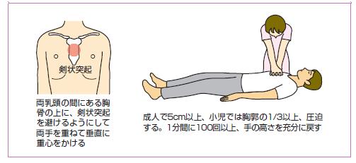 胸骨圧迫説明図