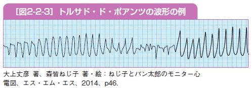 トルサド・ド・ポアンツの波形の例