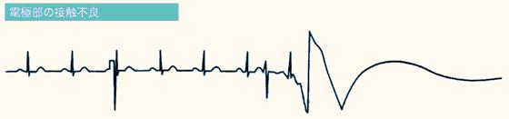 エラー心電図の4つの原因