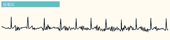 エラー心電図の4つの原因②