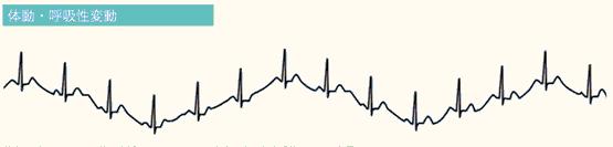 エラー心電図の4つの原因③