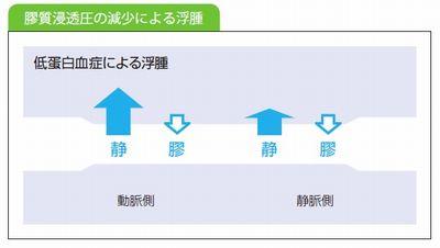 膠質浸透圧による浮腫説明図