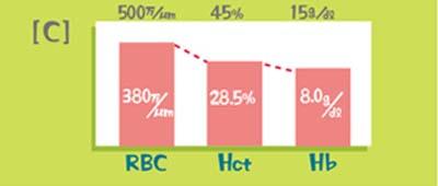 代表的な検査値のパターン(RBC低下<Hct低下<Hb低下)