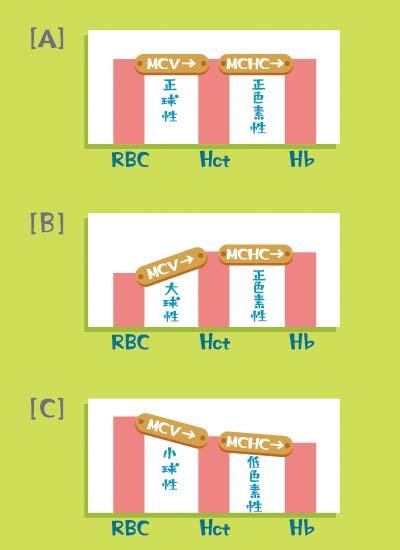 [A]は「正球性正色素性貧血」、[B]は「大球性正色素性貧血」、[C]は「小球性低色素性貧血」のグラフ