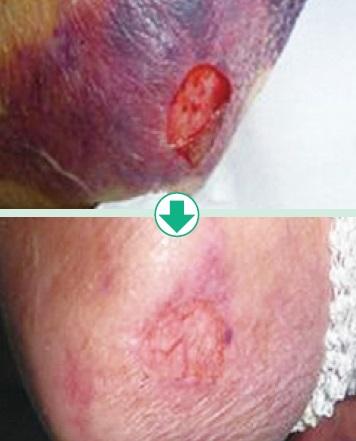 紫斑部の皮膚の生着も進んでいる写真