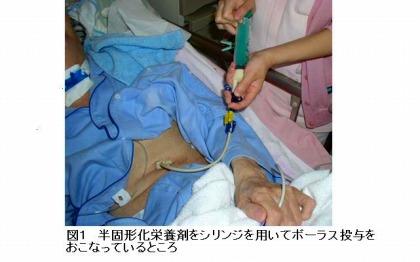 半固形化栄養剤をシリンジを用いてポーラス投与をおこなっているところ、実際の写真