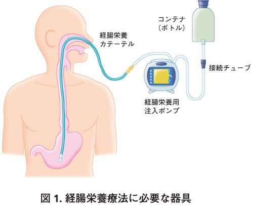 経腸栄養を行うために必要となる器具