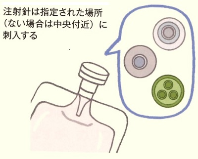 ゴム栓の刺入位置